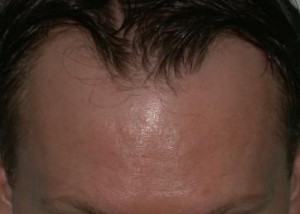 Hair Replacement Tucson Photos Hair Grafts