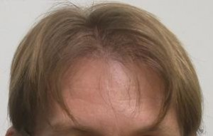 Hair Restoration Arizona Hair Loss Clinic Scottsdale