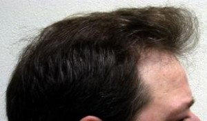 Hair Transplant Tucson Natural Hair Replacement Arizona