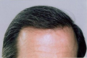 Hair Loss Scottsdale Hair Replacement Clininc Hair Transplants