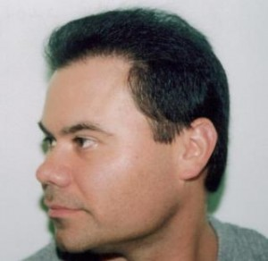 Hair Loss and Hair Thinning​ Scottsdale Hair Replacement