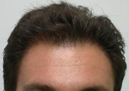 Hair Restoration Arizona Hair Replacement Clinic Dr Keene Post op 1791 frontal grafts