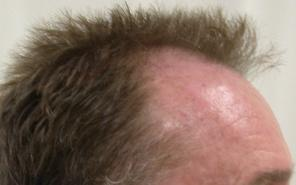 Eyebrow Transplant Scottsdale Hair Replacement Clinic