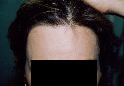 Women Losing Hair Tucson Hair Transplant After 1530 grafts