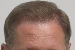 Hair Loss Scottsdale Hair Replacement Dr Keene Surgeon After 3846 grafts