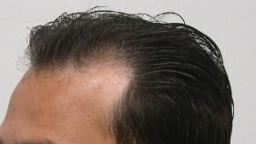 Hair Loss and Hair Thinning​ Tucson Surgery 1 Day Post Op