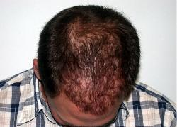 Hair Replacement Tucson Hair Loss and Balding Transplant