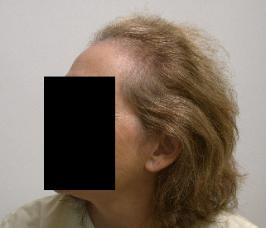Hair Loss and Hair Thinning​ Womens Hair Transplants