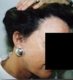 Hair Loss Scottsdale Womens Hair Transplant Arizona After 7 months 1640 grafts