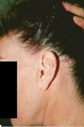 Hair Loss Scottsdale Womens Hair Transplant Arizona