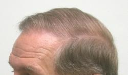 Hair Replacement Tucson Hair Loss Clinic Hair Grafts