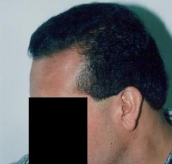 Losing Hair Tucson Hair Restoration Clinic Patient Hair Loss