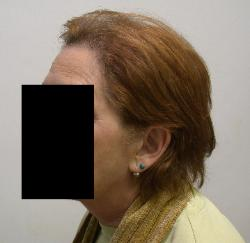 Hair Loss and Hair Thinning​ Womens Hair Transplants After 1500 frontal grafts