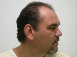 Hair Restoration Arizona Before and After Hair Grafts