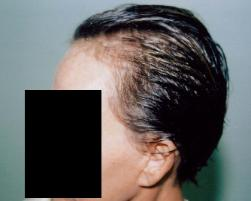 Women Losing Hair Tucson Hair Transplant Clininc