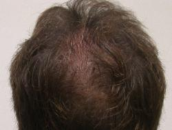 Hair Restoration Arizona Hair Replacement Clinic Dr Keene