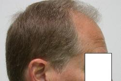 Hair Loss Scottsdale Hair Replacement Dr Keene Surgeon