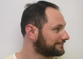 Hair Transplant Scottsdale Hair Replacement Before and After