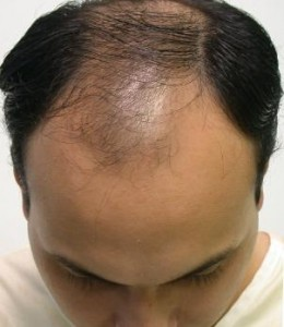 Natural Hair Transplant Tucson Hairline Before and After