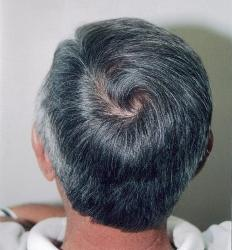 Hair Loss and Hair Thinning​ Tucson Testimonial Hair Grafts