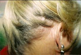 Hair Replacement Tucson Womens Hair Loss Clinic Face lift scar revision after