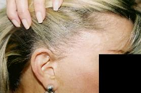 Hair Replacement Tucson Womens Hair Loss Clinic Female_scar_revision_side_burn_after-278x185