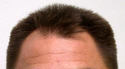 Hair Restoration Tucson Natural Hair Transplant