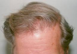 Hair Transplant Scottsdale Testimonial for Hair Loss After 1042 grafts
