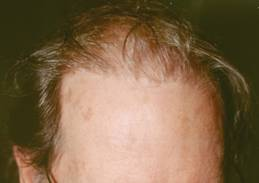 Hair Transplant Scottsdale Testimonial for Hair Loss Before