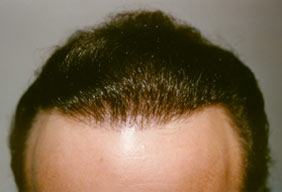 Hair Loss Scottsdale Hair Replacement Center Dr Keene After 1929 grafts