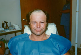 Hair Loss Scottsdale Hair Replacement Center Dr Keene Before