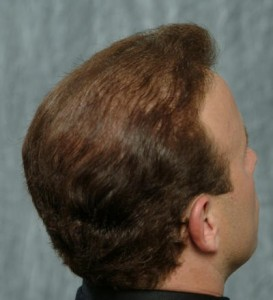 After 4800 grafts, 900 to crown Hair Loss and Hair Thinning​ Tucson Testimonial Hair Loss