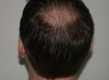 Hair Loss Treatment Truths and Myths