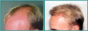 Hair Loss Clinic Scottsdale Hair Direction Natural Hairline