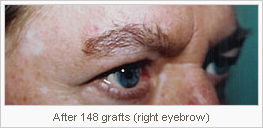 Eyebrow Transplants Tucson Natural Hair Eyebrows