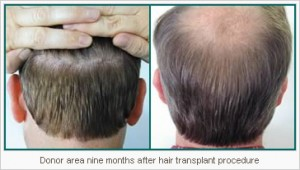 Losing Hair Tucson Transplant Procedure Natural Hairline