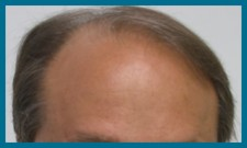 Hair Loss Scottsdale Megasessions