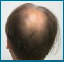 Hair grafts for Hair Loss