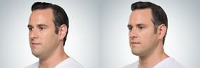 Before and after Kybella to diminish a double chin
