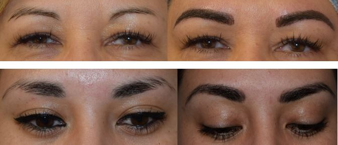 Eyebrows Enhanced with Microblading