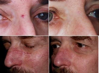 Laser vein and hyperpigmentation treatment before and after on facial area