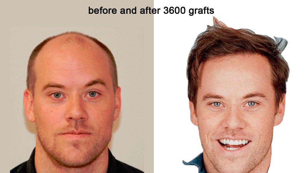 Hair Transplantation Arizona, Hair Transplant Scottsdale